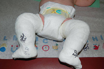 clubfeet in casts